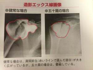 肩関節周囲炎①